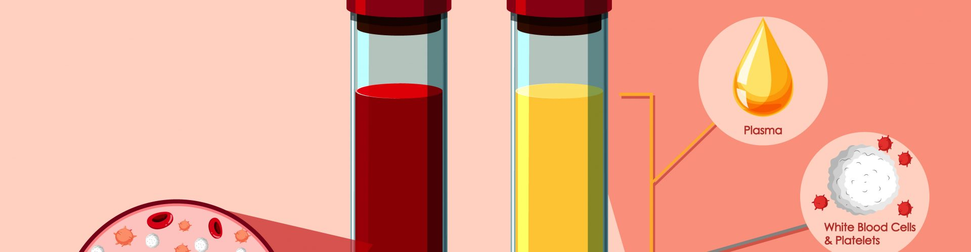 Covid-19: Die Europäische Kommission unterstützt die Behandlung mit Rekonvaleszenten-Plasma