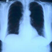 Todesfälle durch COVID-19 sind oft mit Sepsis verbunden